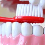 Care for Dental Implants