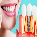 5 Important Facts About Dental Implants